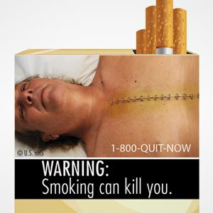 File photo of FDA cigarette warning label (© U.S. Food and Drug Administration/AP)